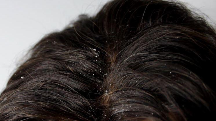 Olio di canfora puro per capelli