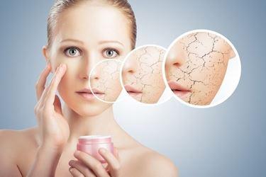Una buona crema idratante evita la disidratazione della pelle